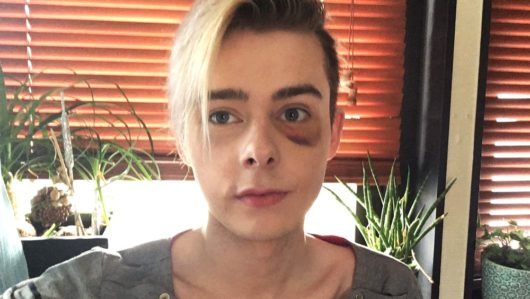 В Норвегии избили гомосексуалиста